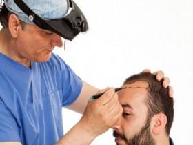 La greffe de cheveux : une technique innovante, rapide et non douloureuse